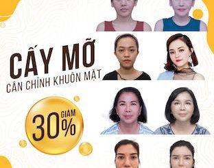 [ƯU ĐÃI THÁNG 09/2020] CẤY MỠ COLEMAN TẠI DIVA ƯU ĐÃI TỚI 30%