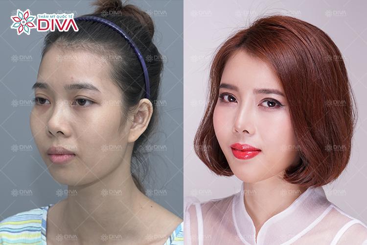 Hình ảnh khách hàng bạn Trâm trước và sau khi thẩm mỹ tại Thẩm mỹ Quốc Tế Diva
