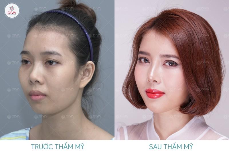 hình ảnh trước và sau khi cấy mỡ mặt của bạn Cẩm Vân
