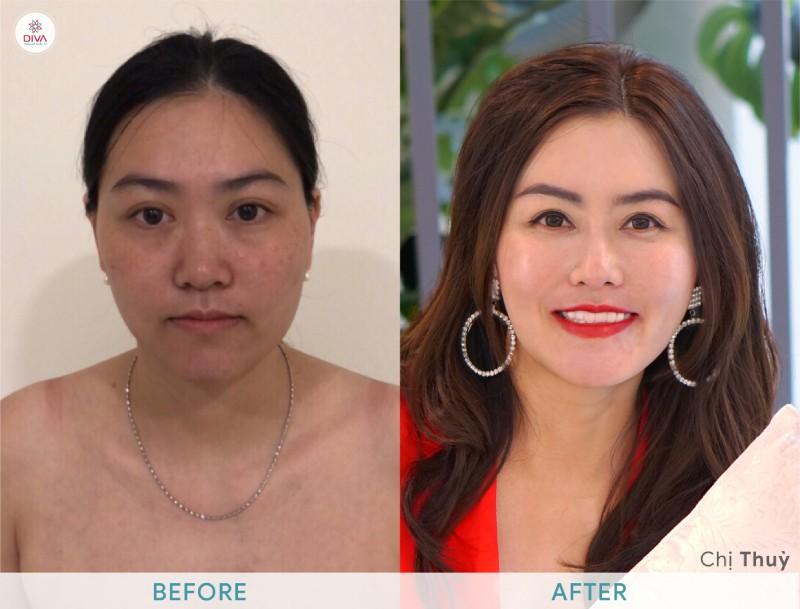 hình ảnh trước và sau khi cấy mỡ mặt của Chị Thuỷ