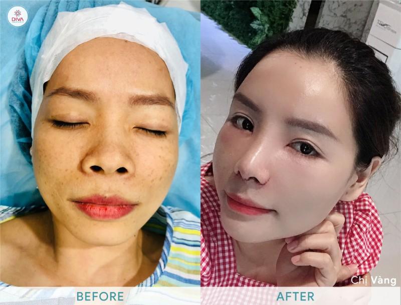 hình ảnh trước và sau khi cấy mỡ mặt của Chị Vàng