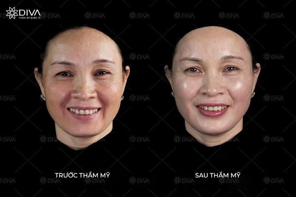 Thần thái gương mặt, độ chảy xệ thay đổi hoàn toàn sau khi tiêm Filler MD Dynamic Codes.