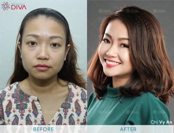 Tiêm Filler giúp hiệu chỉnh sống mũi cao, môi đầy đặn, điều chỉnh cẳm ngắn mà không cần phẫu thuật.
