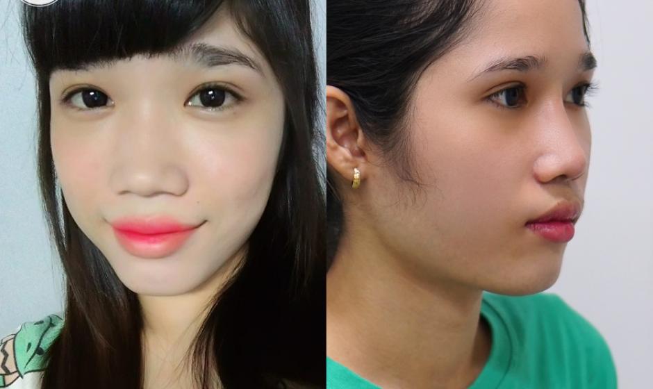 Cắt cánh mũi – Sở hữu ngay gương mặt thanh tú, hài hòa