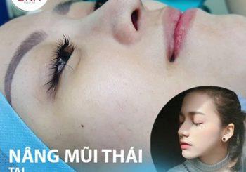 Nâng mũi Thái Lan cho dáng mũi cao tây, thanh thoát