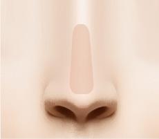 Kiểm tra độ cân bằng của sụn mũi và khâu lại