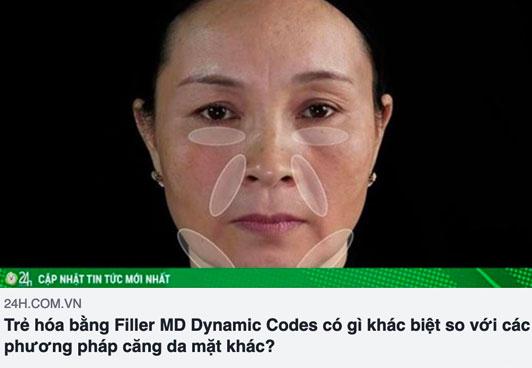 báo 24h.com.vn nói về kỹ thuật tiêm filler md dynamic codes tại thẩm mỹ diva