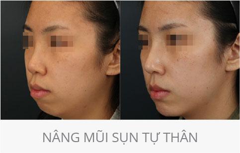 hình ảnh trước và sau thẩm mỹ mũi