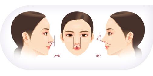 cắt cánh mũi, thu gọn cánh mũi