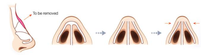 hình ảnh minh họa mũi gồ