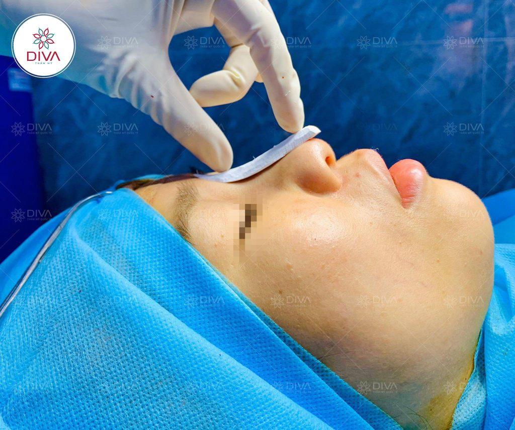 Tùy thuộc vào dáng mũi nguyên thủy mà bạn có thể chọn phương pháp nâng mũi bằng sụn phù hợp nhất.