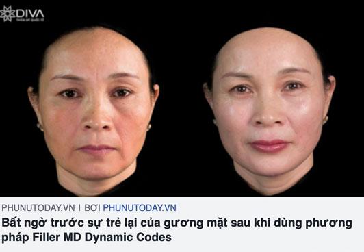 báo phunutoday.vn nói về kỹ thuật tiêm filler md dynamic codes tại thẩm mỹ diva