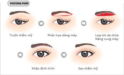 trường hợp da chảy xệ nhiều vùng đuôi mắt