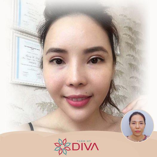 Cấy mỡ cằm DIVA – Điều chỉnh dáng cằm đẹp cân đối, tự nhiên