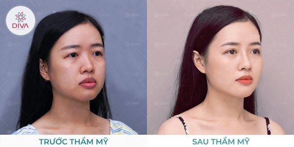 giai phap xoa tan bong mat cai thien than thai chi sau 15 phut 2 1