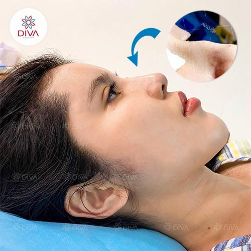 Sở hữu dáng mũi thanh tú không cần phẫu thuật nhờ cấy mỡ mũi DIVA