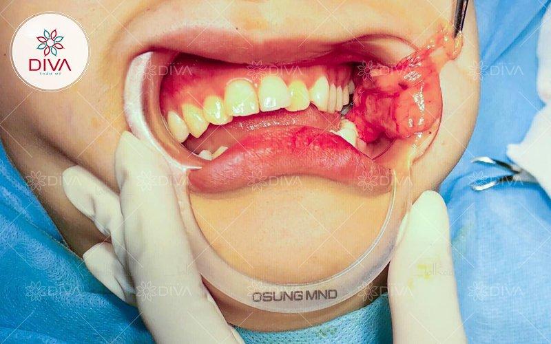 tiểu phẫu bóc mỡ má thon gọn khuôn mặt