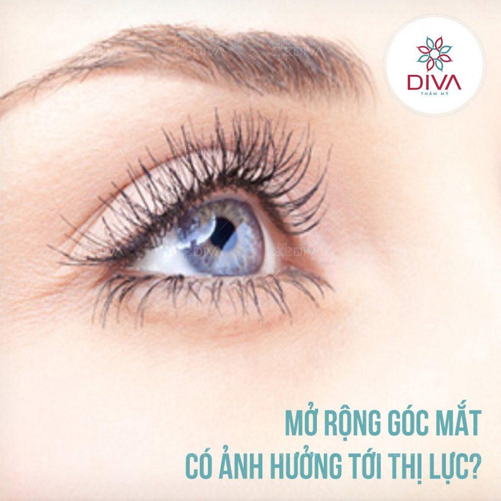 mở rộng góc mắt có ảnh hưởng tới thị lực