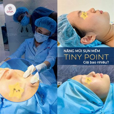 Nâng mũi sụn mềm Tiny Point giá bao nhiêu?
