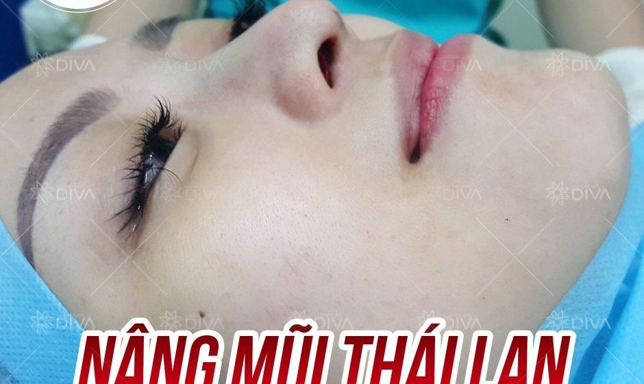 Nâng mũi Thái Lan đẹp tự nhiên ở đâu?