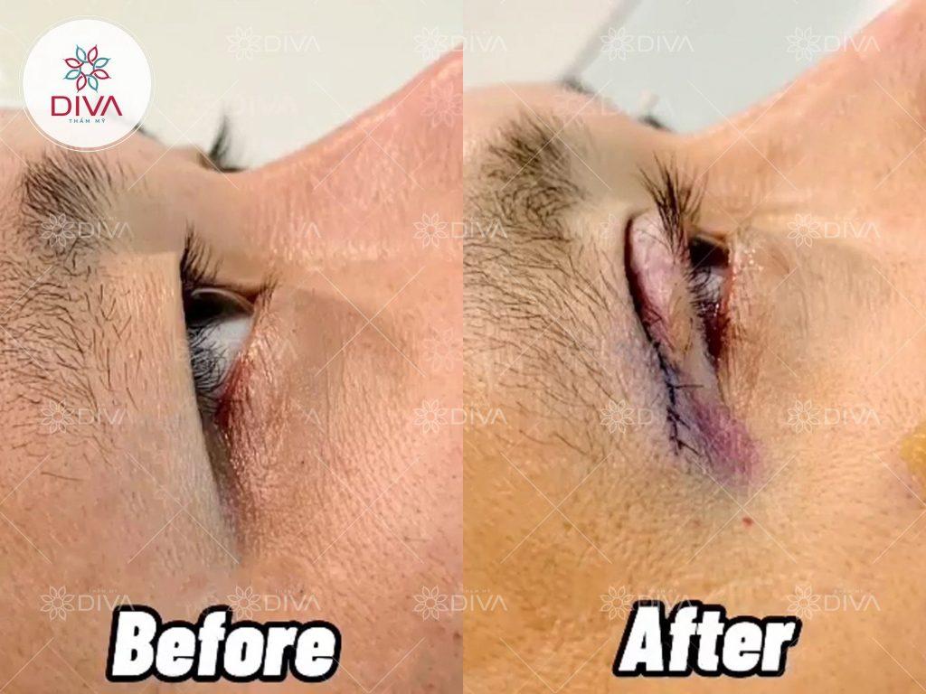 Giai đoạn lành vết thương sau cắt mắt hai mí