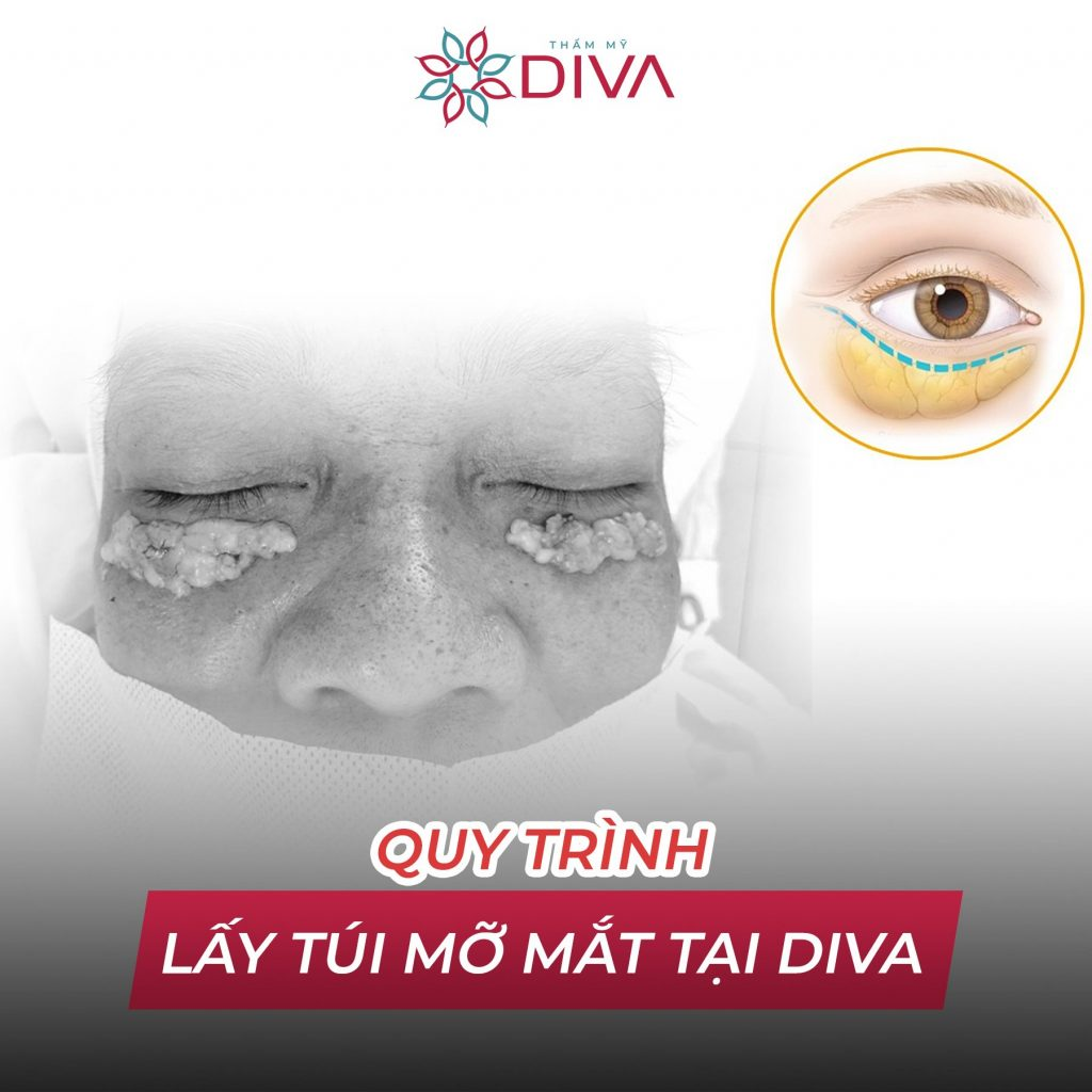quy trình trình lấy túi mỡ mắt tại diva