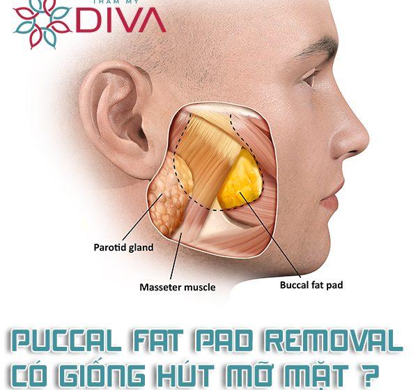 Buccal Fat Pad Removal là gì? Có giống hút mỡ mặt không?