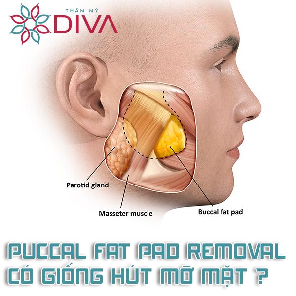 Buccal Fat Pad Removal là gì