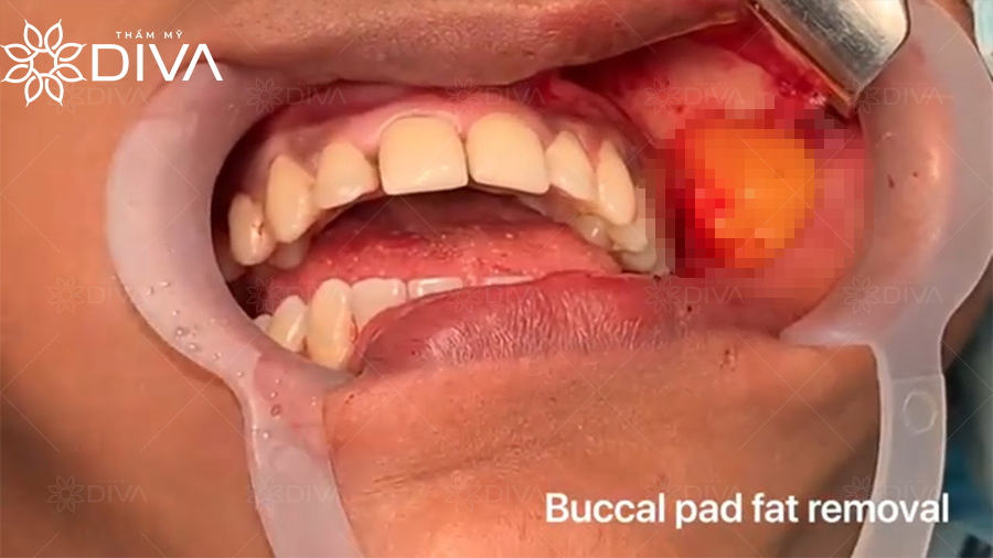 Buccal Fat Pad Removal chỉ giải quyết vấn đề do túi mỡ má gây nên.