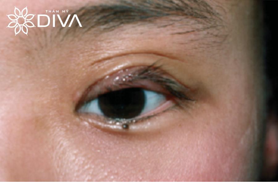 Tình trạng lật mi sau khi cắt mắt tại các cơ sở không uy tín.