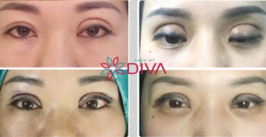 Mí mắt bị trợn không chỉ ảnh hưởng thẩm mỹ, mà còn khiến giác mạc dễ khô gây bệnh về mắt.