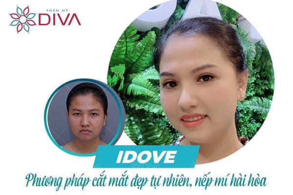 IDOVE - Phương pháp cắt mắt đẹp tự nhiên, hài hòa tại Thẩm mỹ DIVA