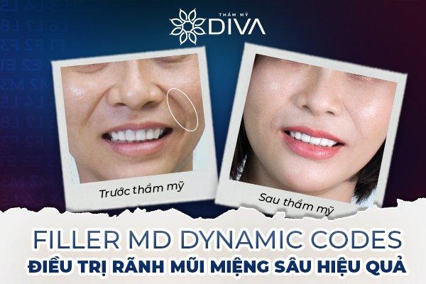 Kỹ thuật tiêm Filler MD Codes là phương pháp điều trị rãnh cười đúng nguyên nhân