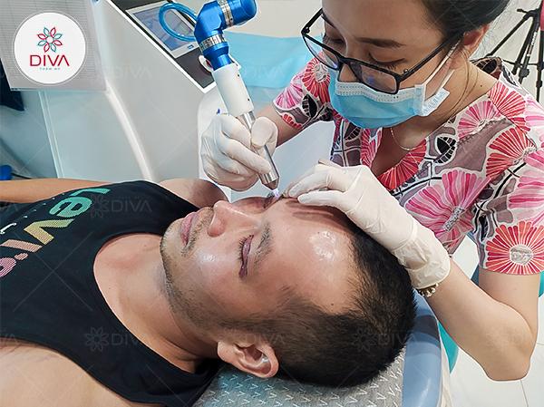 Khách hàng được chăm sóc hậu phẫu với công nghệ nhiệt lạnh sau khi cắt mắt hai mí tại DIVA
