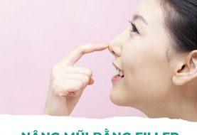 Nâng mũi bằng filler giữ được bao lâu?
