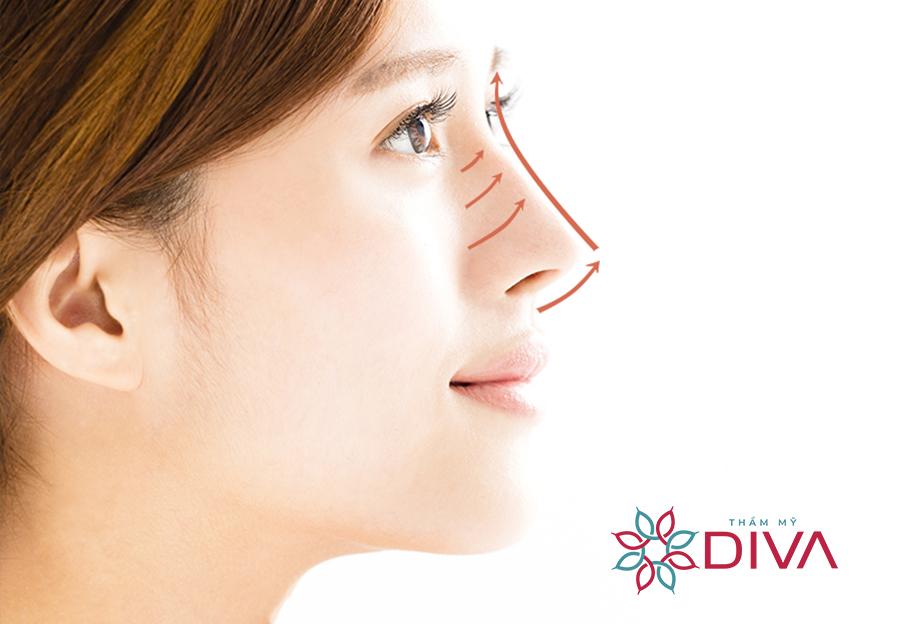 Dáng mũi S Line là dáng mũi mềm mại, tự nhiên rất phù hợp với gương mặt Á Đông.