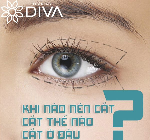 Review cắt mí mắt: khi nào nên cắt? Cắt thế nào? Cắt ở đâu?
