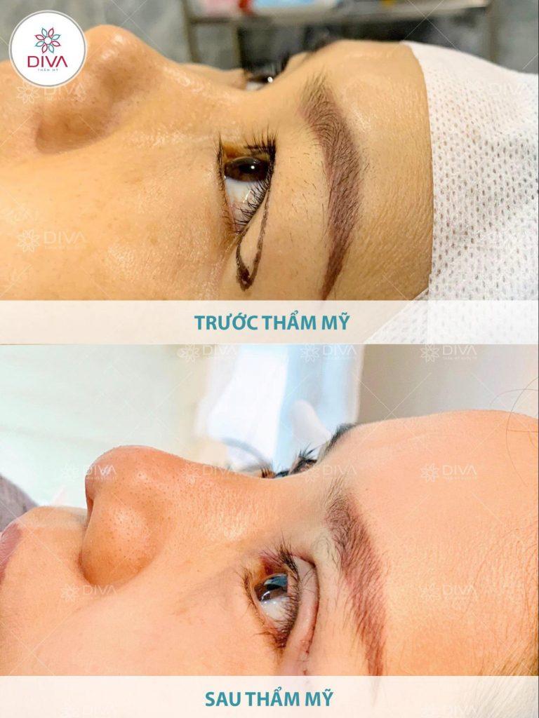 Trong 3 ngày đầu sau khi cắt mí mắt, nếp mí sẽ sưng to và cảm giác hơi cộm