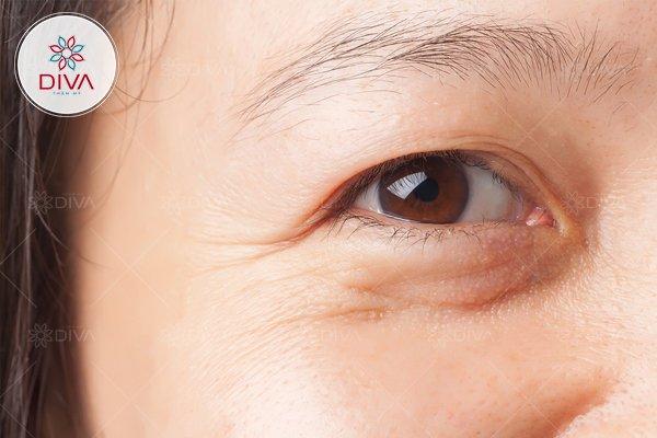 Vì lão hóa, vùng da mắt trở nên lỏng lẻo tích tụ mỡ tạo thành bọng mắt dưới