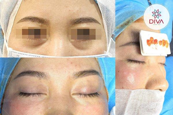 Hình ảnh khách hàng sau khi thực hiện lấy bọng mỡ mắt dưới tại Thẩm mỹ DIVA