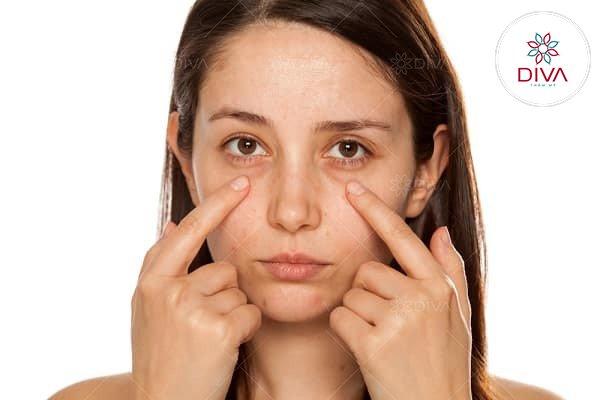 Bọng mắt dưới nặng nề là nguyên nhân khiến khuôn mặt già nua, thiếu sức sống