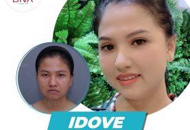 Cắt mắt đẹp tự nhiên idove tại thẩm mỹ DIVA