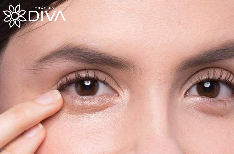 Bọng mắt không phải là vấn đề bệnh lý, nhưng lại gây mất thẩm mỹ nếu phát triển quá to hoặc đi kèm các vấn đề khác như quầng thâm, chảy xệ...