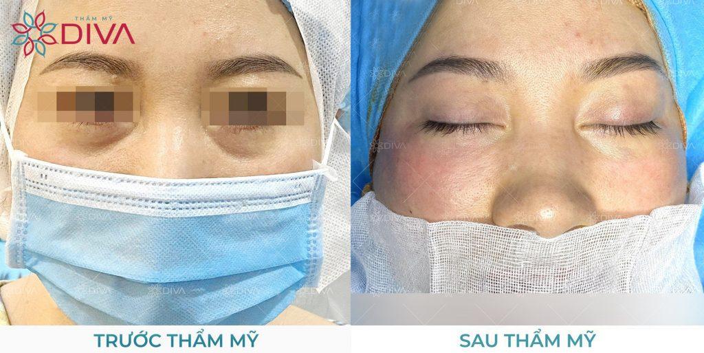 Bạn có thể kết hợp lấy mỡ và cấy mỡ mí dưới để cải thiện hoàn hảo khuyết điểm bọng mắt.
