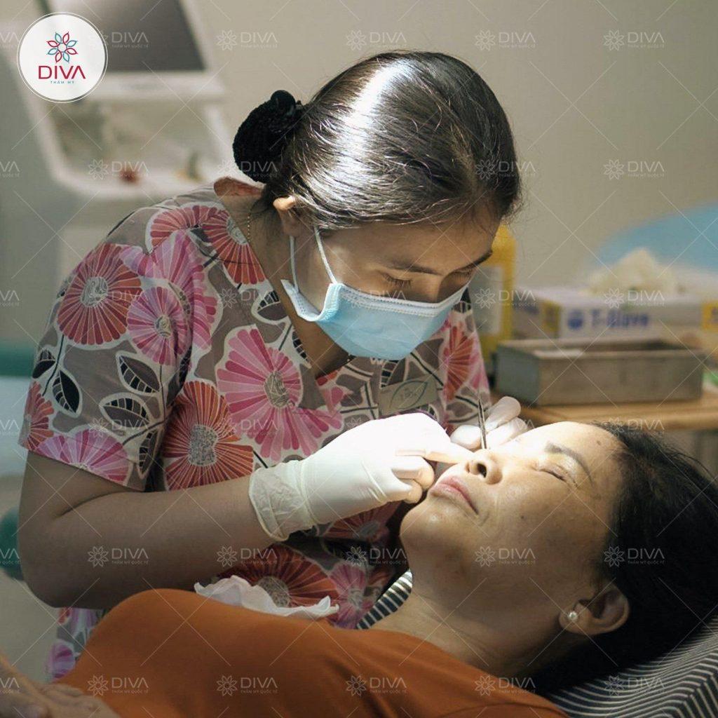 Quá trình chăm sóc hậu phẫu sau cắt mí mắt