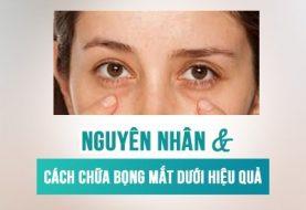 Nguyên nhân và cách chữa bọng mắt dưới hiệu quả