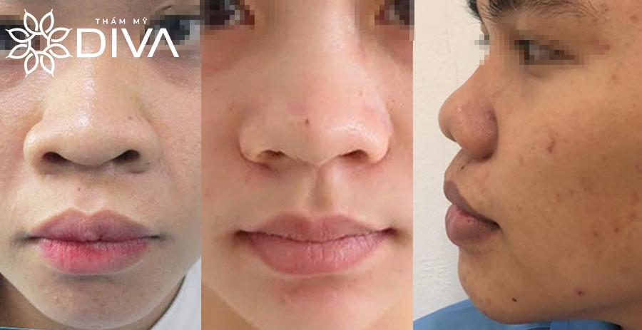 Dáng mũi to có ảnh hưởng như thế nào đến tổng thể khuôn mặt?