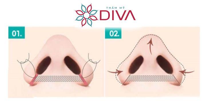 Cuộn cánh mũi: Thường dùng cho những người có lỗ mũi to, rộng và da cánh mũi mỏng.