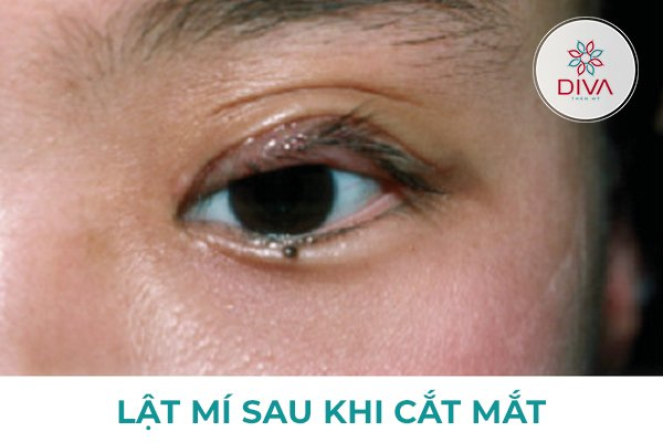 tình trạng lật mí sau khi cắt mắt